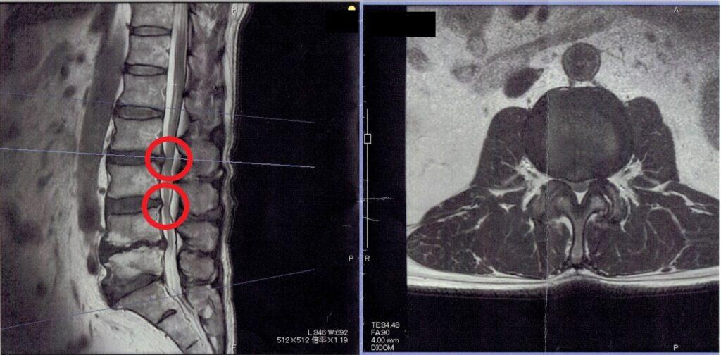 脊柱管狭窄症のMRI画像№1