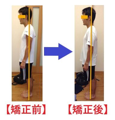 40代男性の姿勢矯正・姿勢改善の施術前と施術後の変化の画像