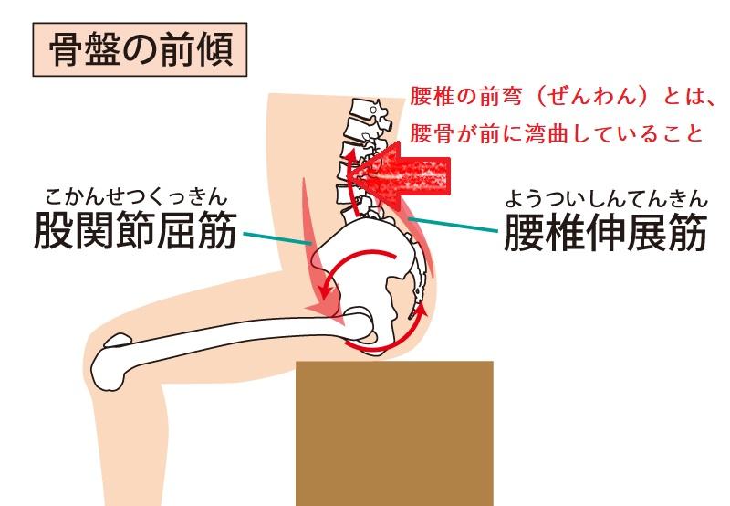 骨盤の前傾で、腰椎の前弯とは腰骨が前に湾曲していること