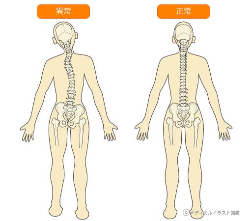 正常な骨盤と背骨と首の骨の状態と歪んでいる骨盤と背骨と首の骨の状態
