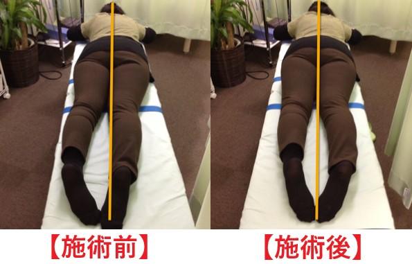 坐骨神経痛(ヘルニア)のある50代女性の施術前と施術後の変化