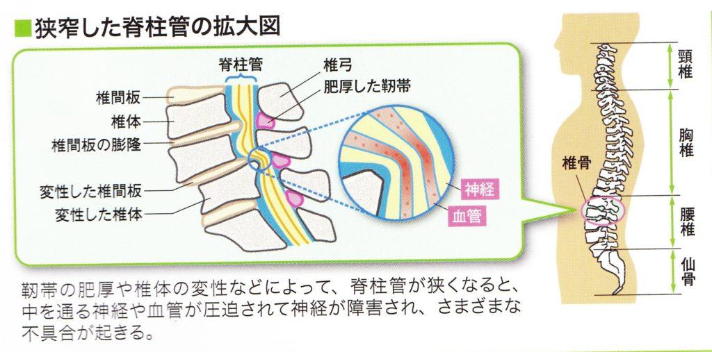 脊柱管狭窄症になって脊柱管が狭くなると中を通る神経と血管が圧迫されて神経障害など様々な症状が起こる