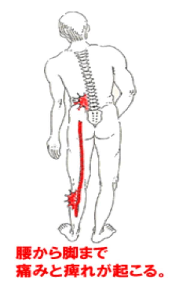 腰から足まで痛みやしびれが起きる