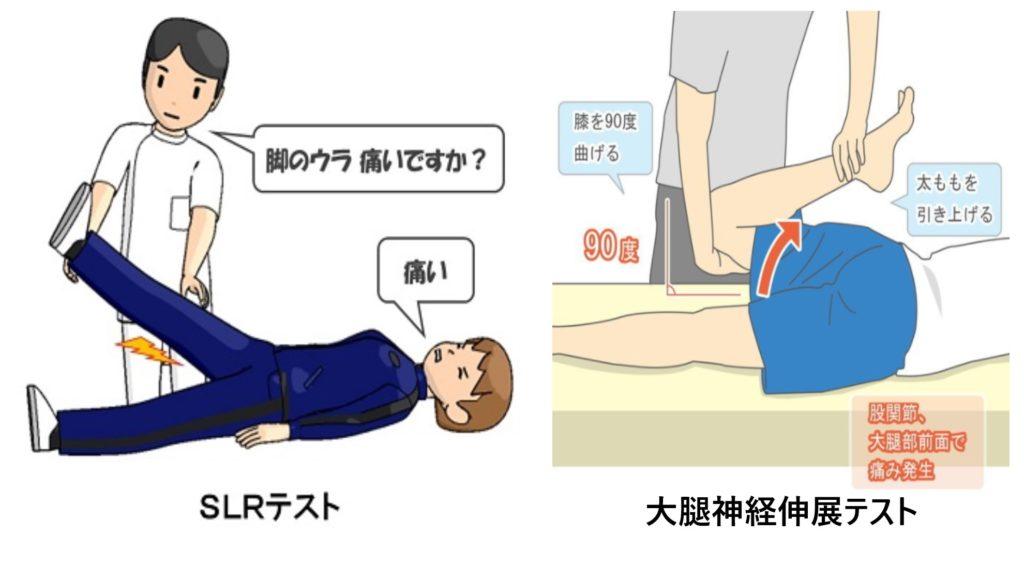 SLRテストと大腿神経伸展テストのやり方
