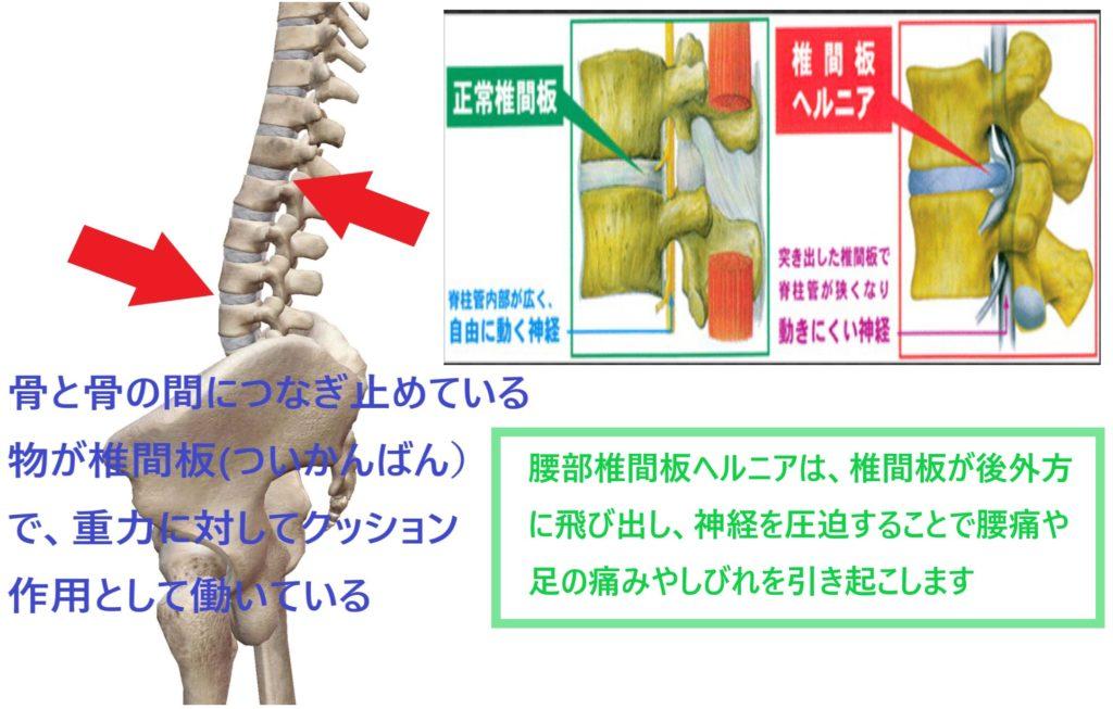 腰椎椎間板ヘルニアの病態説明とメカニズム