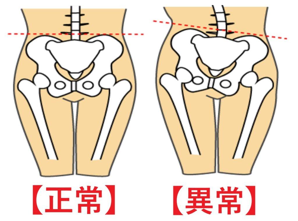 産後の正常な骨盤と異常な骨盤の図
