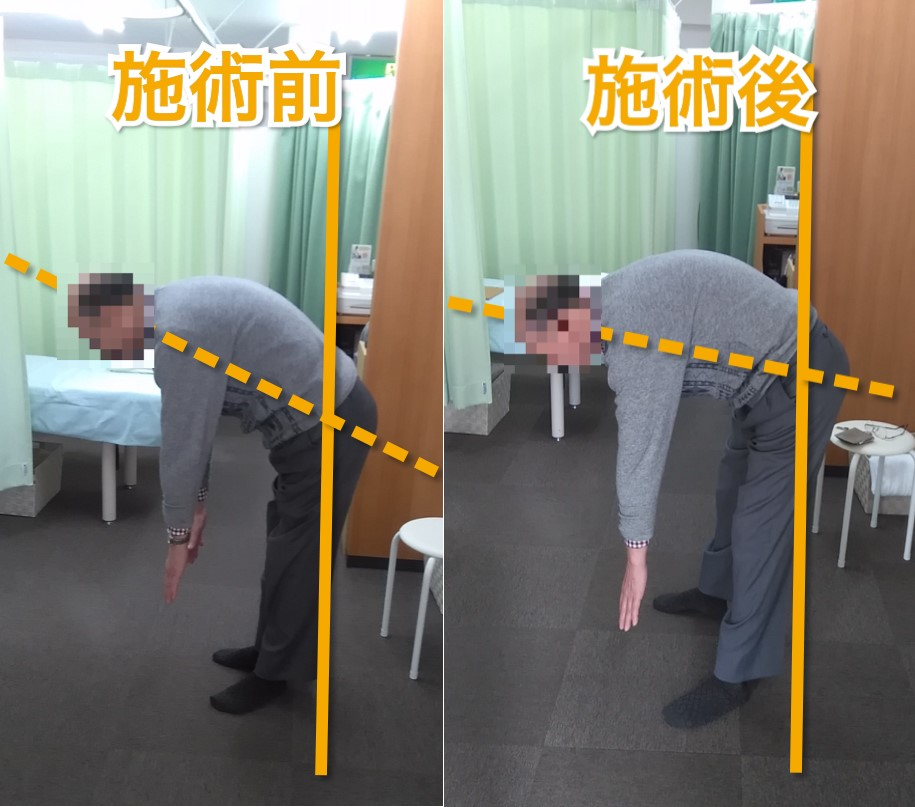 腰痛施術をした70代男性の施術前と施術後で前屈がいきやすくなっている