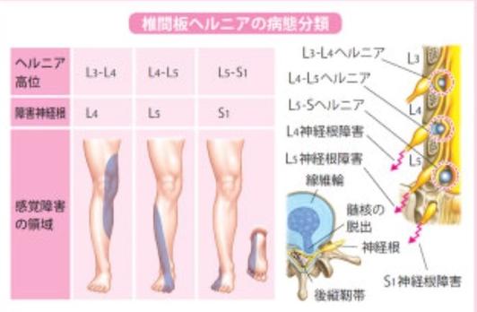 椎間板ヘルニアが起こった時の痛みやしびれが出る時の病態分類