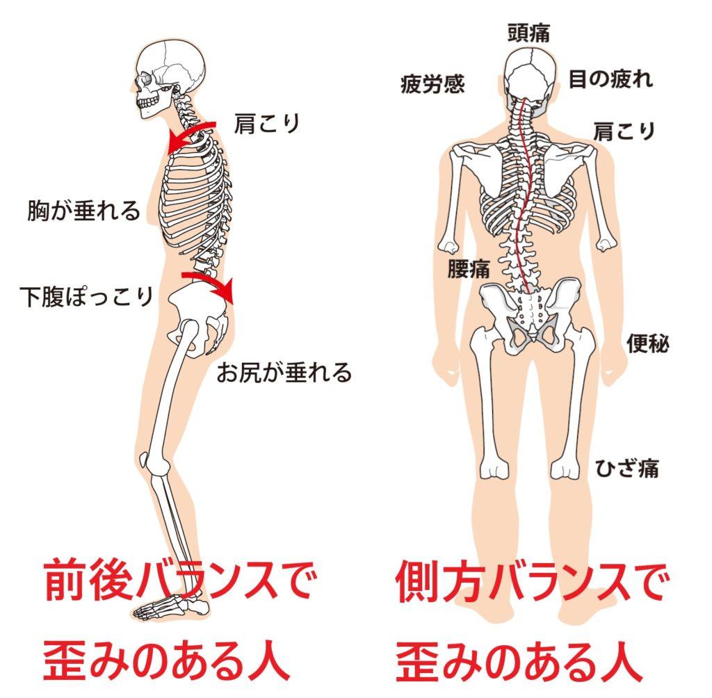 骨盤が歪み前後左右のバランスが悪くなると肩こりと首こりになるのを説明している図