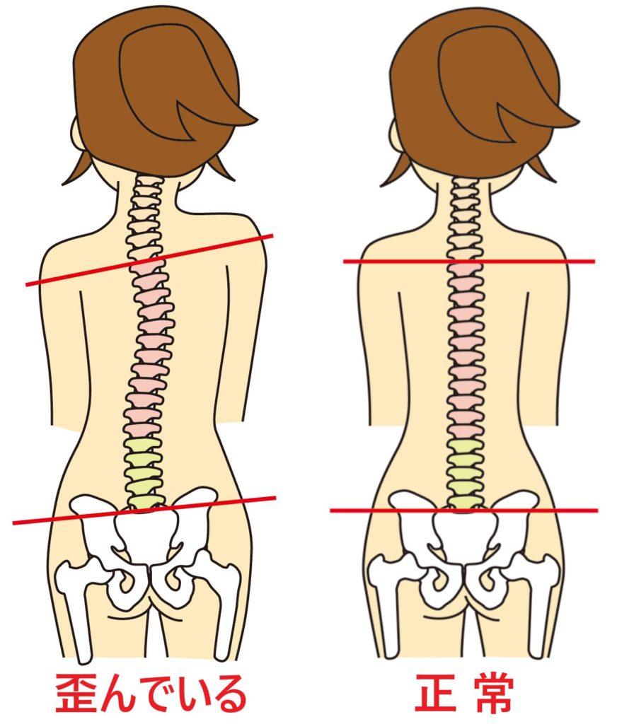 正常な身体の状態と歪んでいる身体の状態