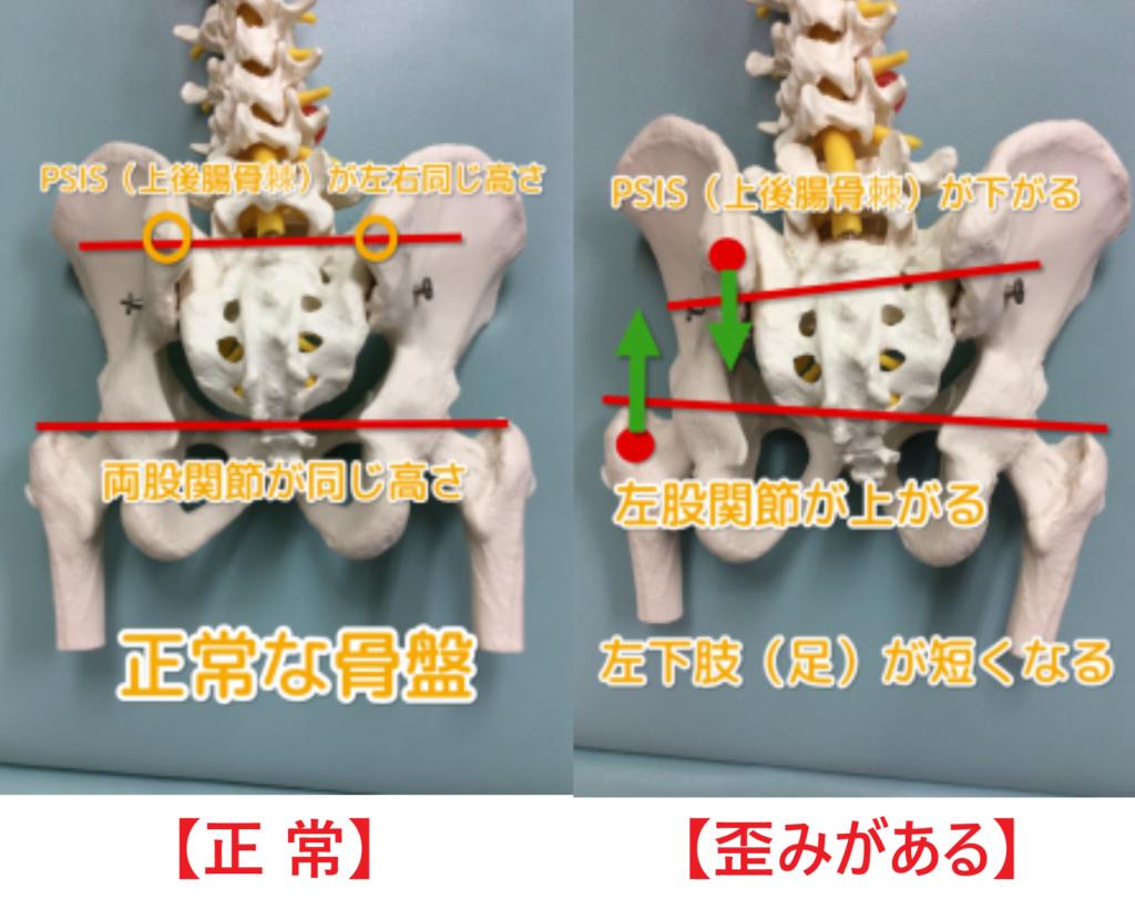 正常な骨盤と歪みのある骨盤の身体の状態で異常な骨盤は左股関節が上に上がっている状態