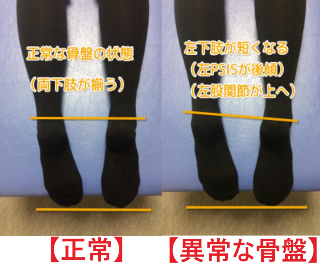 正常な骨盤と歪みのある骨盤の身体の状態で異常な骨盤は、左足が短くなっている