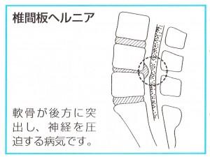 椎間板ヘルニアは、軟骨が後方に突出し、神経を圧迫する病気です