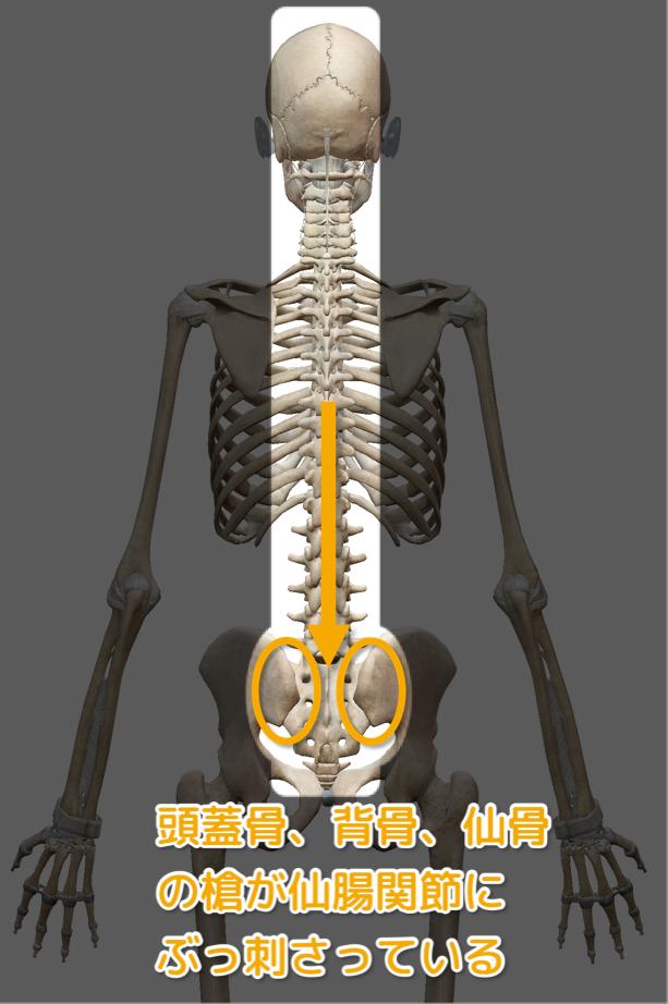仙腸関節の状態を説明する画像