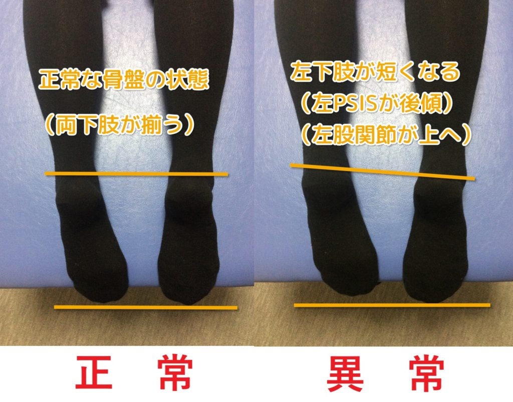 産後の正常な骨盤は両下肢がそろい、産後の異常な骨盤は左(右)下肢の長さが短くなる