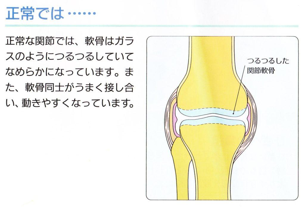 正常な膝の状態