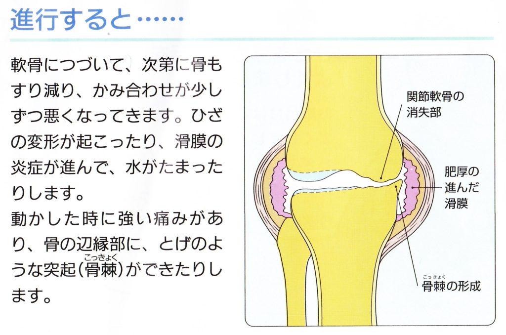 変形性膝関節症が進行してしまった時の膝の状態
