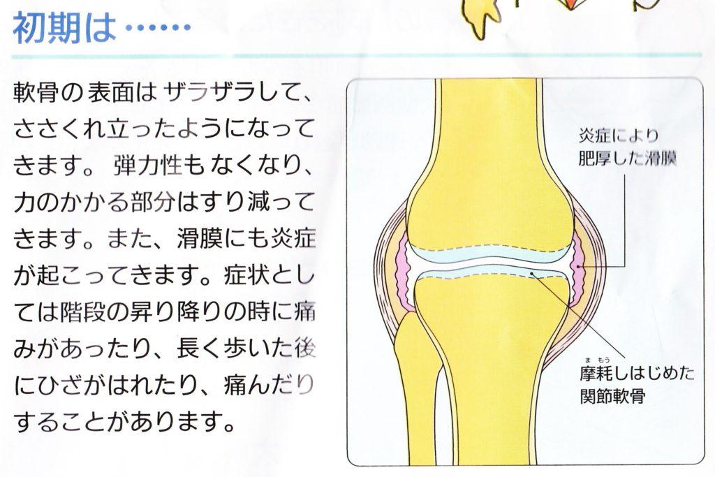 変形性膝関節症の初期の状態