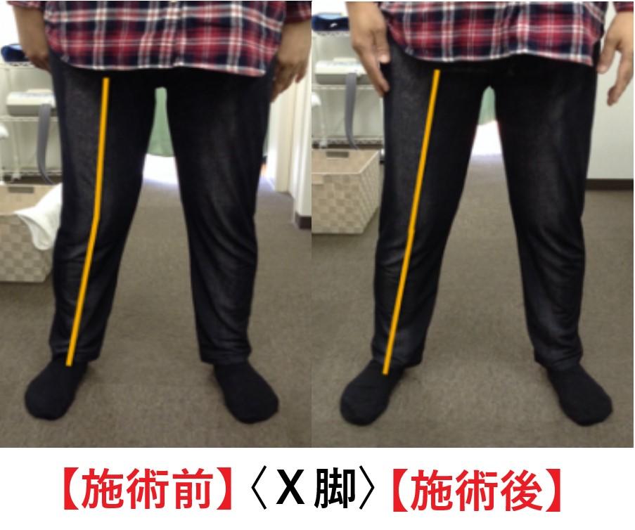 膝の痛みがある患者様の施術前と施術後の変化画像