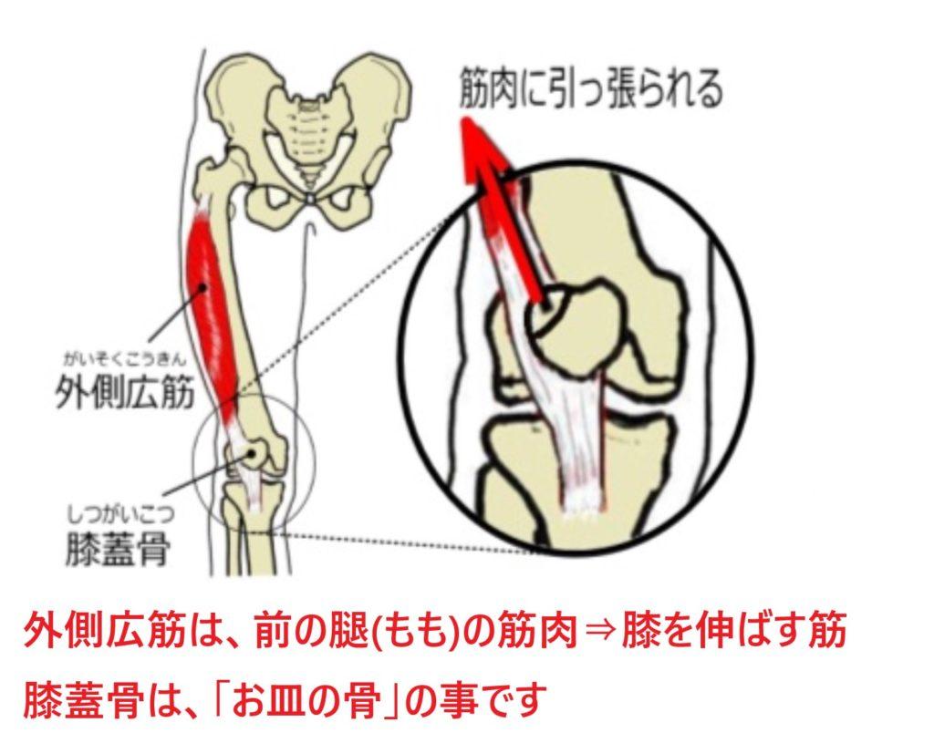 有痛性分裂膝蓋骨が起こるメカニズム