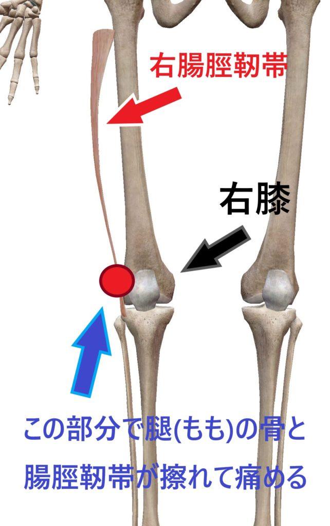 腸脛靭帯炎が起こる場所