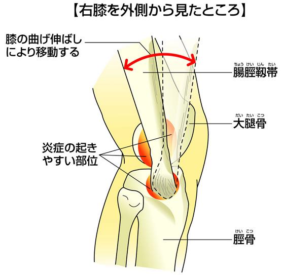 腸脛靭帯炎の起こる細かいメカニズム