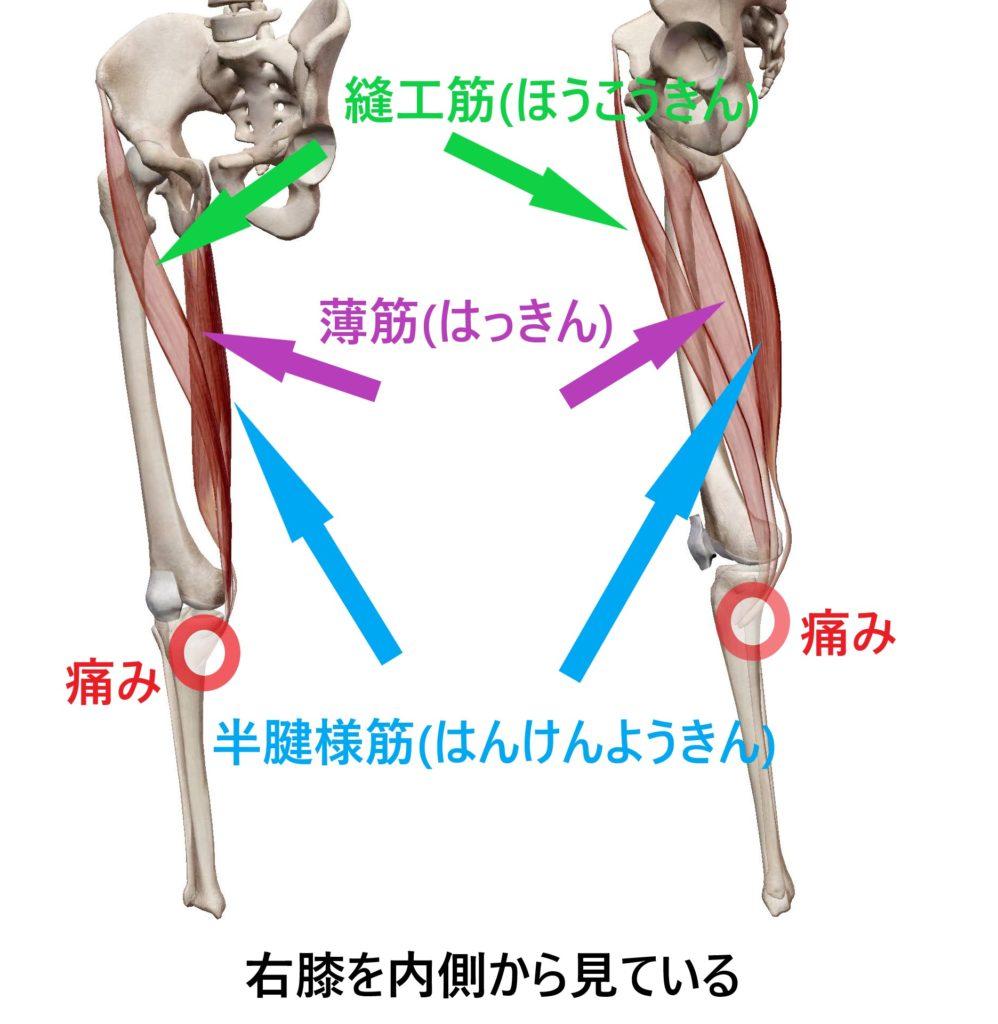 鵞足炎の原因である縫工筋、薄筋、半腱様筋の筋肉図と鵞足炎の起こる場所
