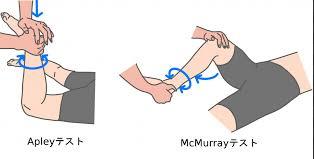 McMurray(マクマレー)テストやApley(アプレー)テストのやり方