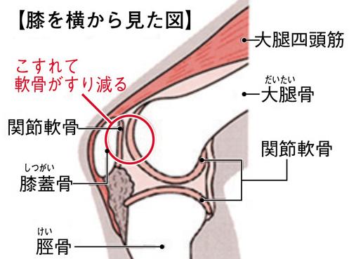 膝蓋軟骨軟化症の起こる場所