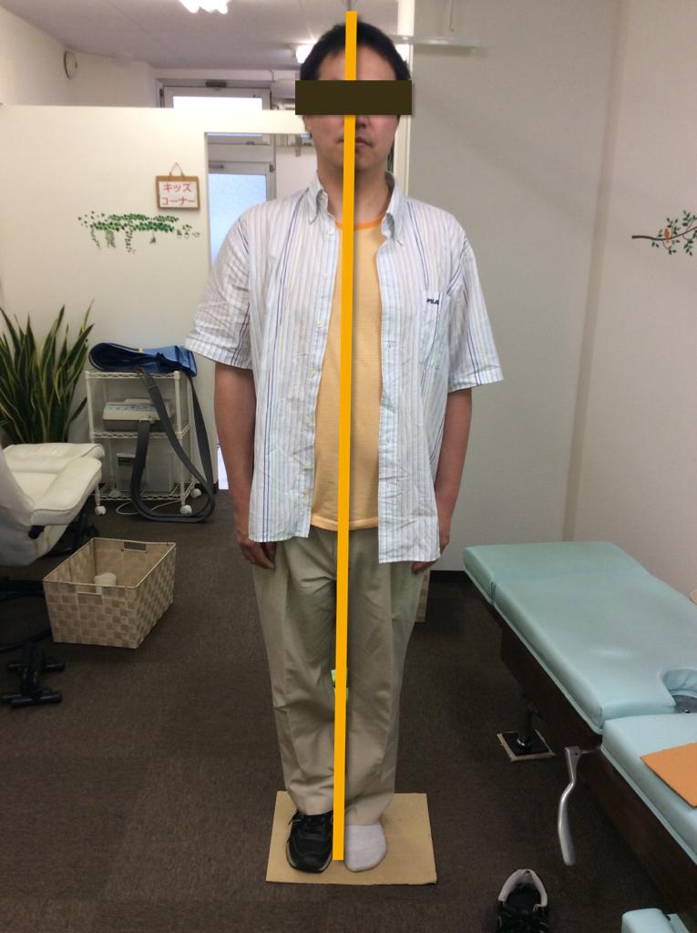 腰痛と左膝に痛みがある患者様が左足だけシューズを履いている写真