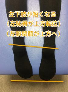 出産直後から4ヶ月続く肩こりと腰痛に悩む40代女性の検査で左の骨盤に異常が出ることで左下肢が短くなっている