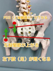 出産直後から4ヶ月続く肩こりと腰痛に悩む40代女性の検査で左の骨盤に異常が出ている骨盤の画像
