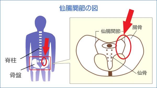 ぎっくり腰を起こした40代女性の腰痛の痛みの根本原因である左仙腸関節の部分を示した図