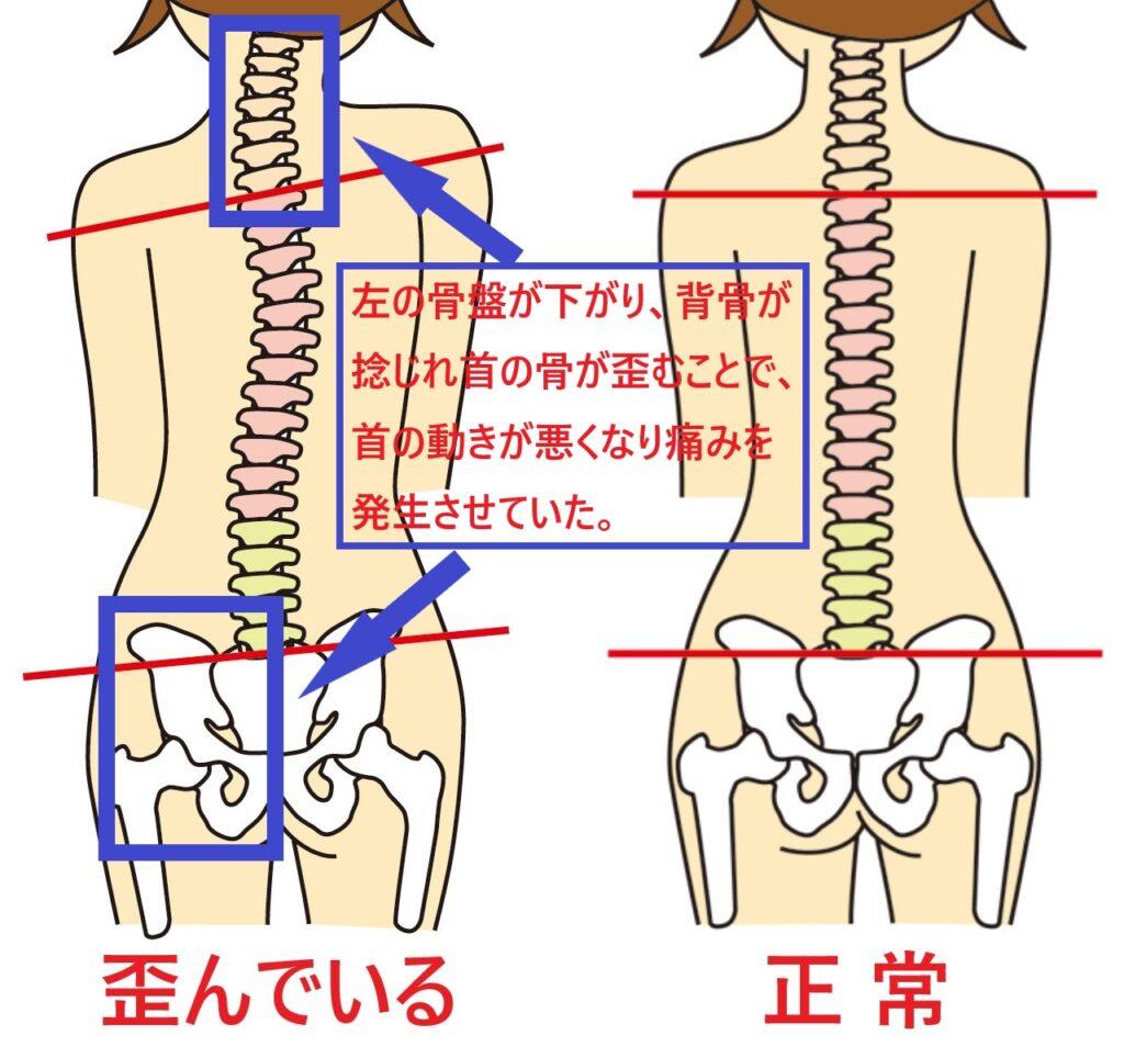 骨盤の歪みから首の歪みを作り、寝違いを起こしている状態を説明している図
